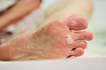 Are plantar warts contagious - Are warts contagious in a swimming pool ...