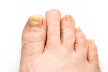 Image result for Treating Toenail Fungus