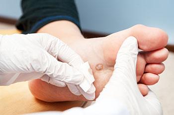 wart treatment calgary